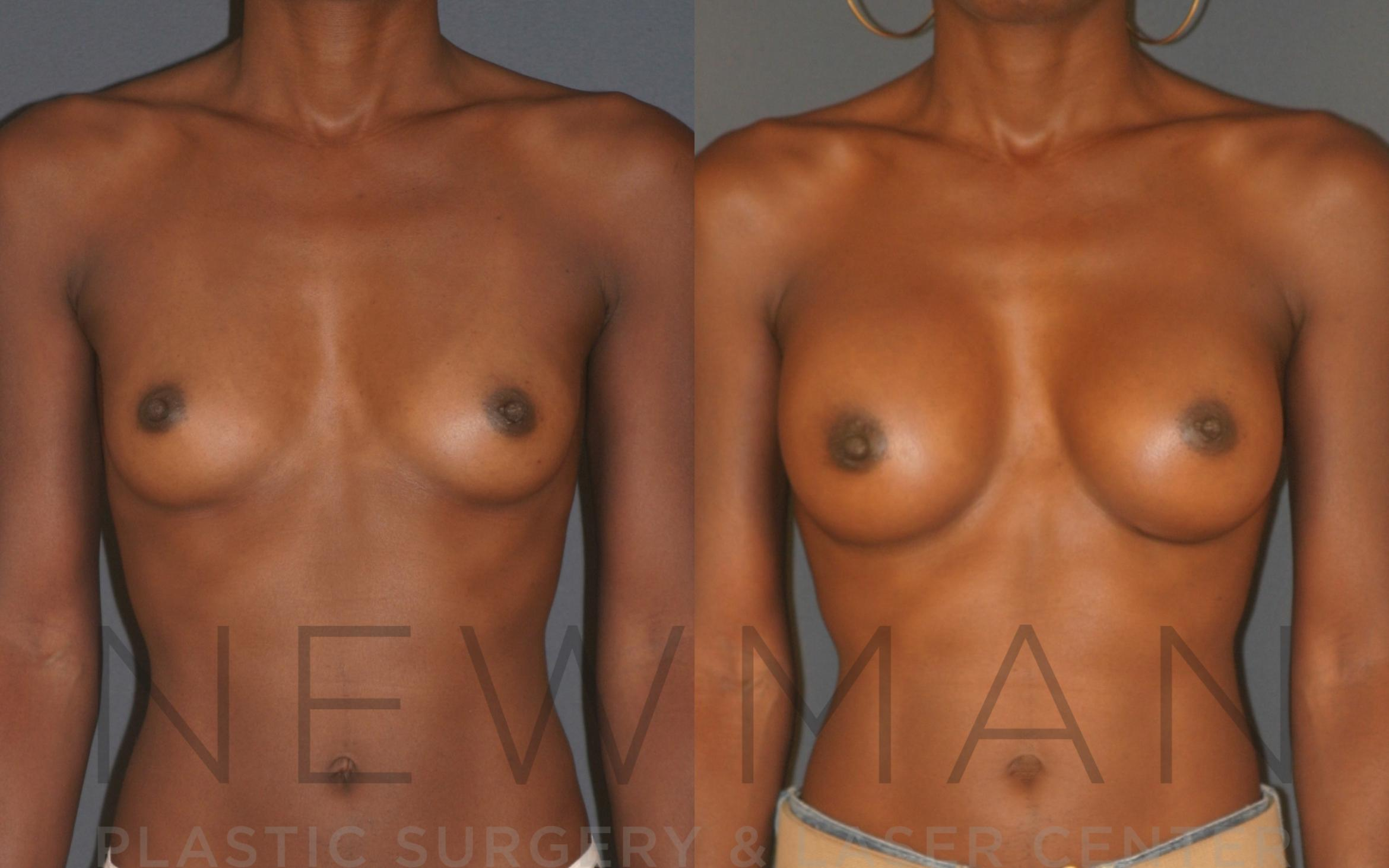 Breast Augmentation Case 12 Before & After Front | Westchester, NY | Newman Plastic Surgery & Laser Center