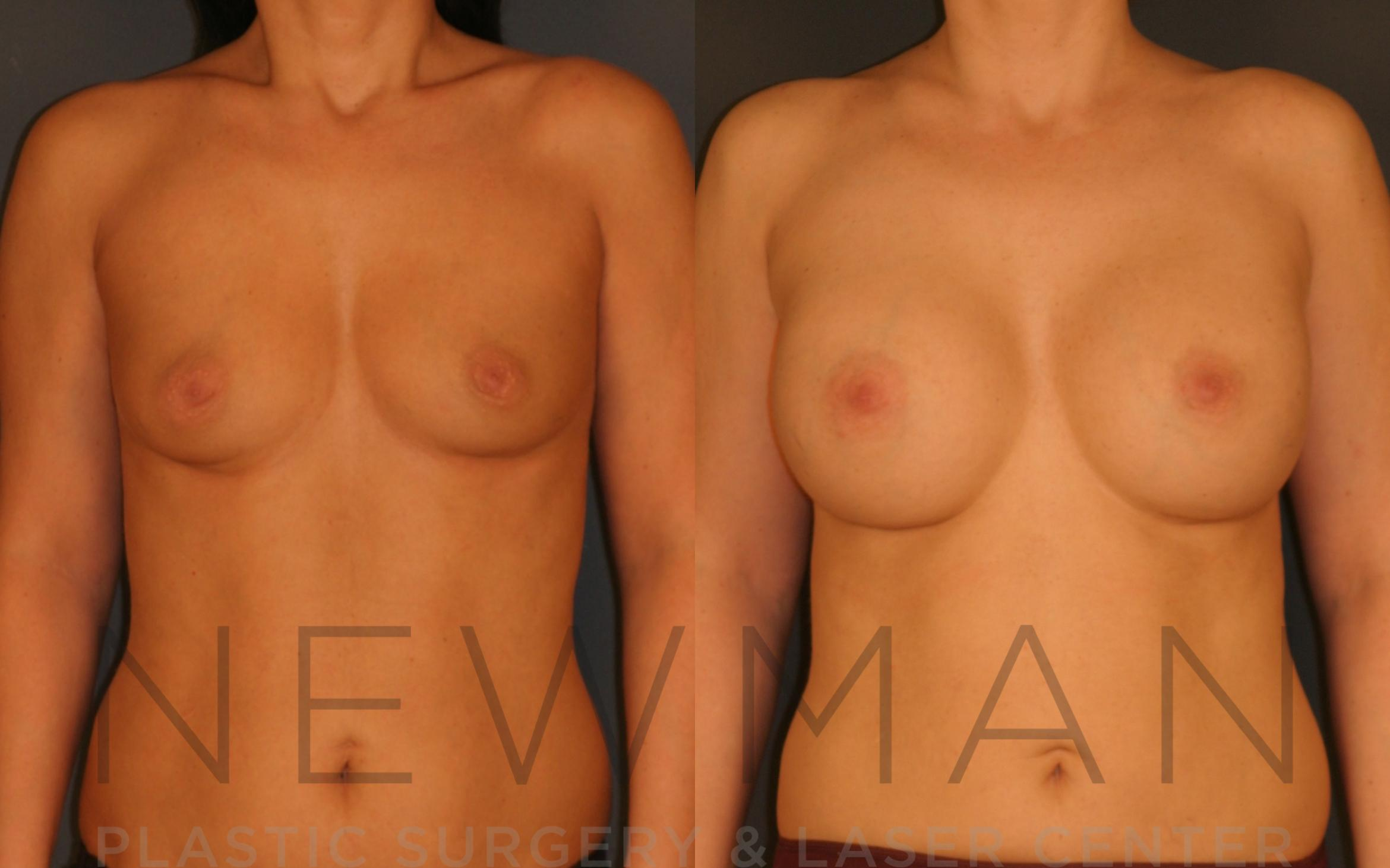 Breast Augmentation Case 19 Before & After Front | Westchester, Long Island & Manhattan, NY | Newman Plastic Surgery & Laser Center